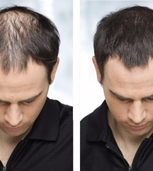antes e depois full hair